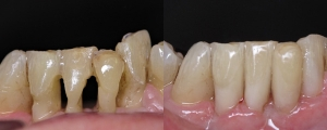 Bonding Lower Teeth