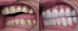 Replacing Unattractive Dentures