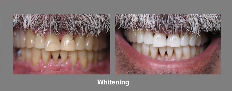 Teeth Whitening Brunswick OH: Restorative Dentistry | Dr. Lisa Elias - whitening